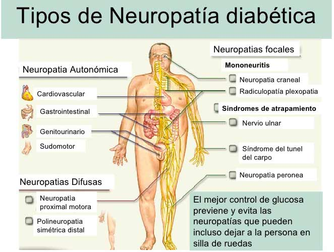 Neuropatía diabética - periférica - autonómica - tipo de