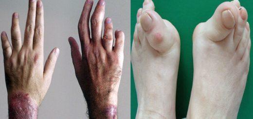 6 consejos tratamiento de la artrtis
